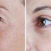 cosmetic_eyelid_surgery