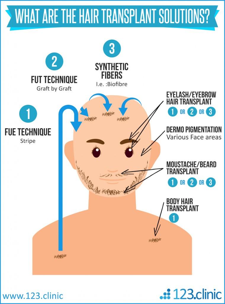 hairtransplant1000_grafts123clinic__Copie