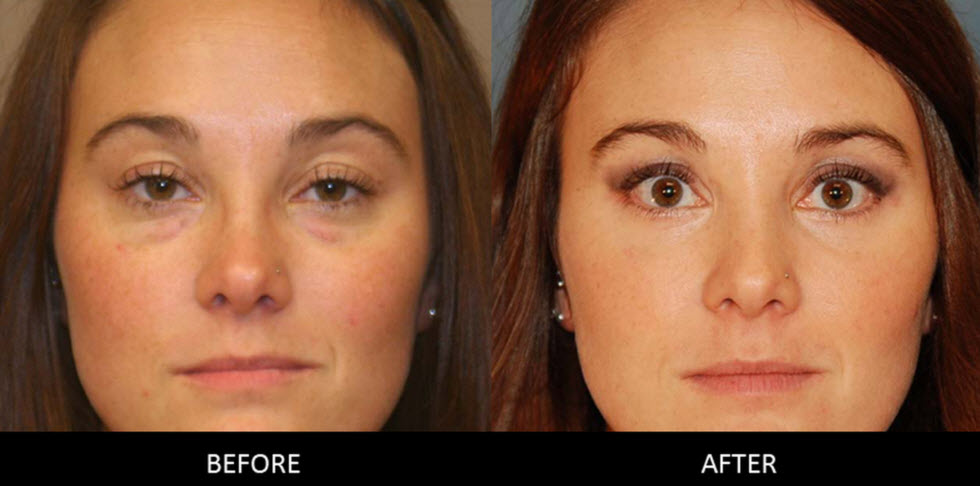 Expect-from-Blepharoplasty