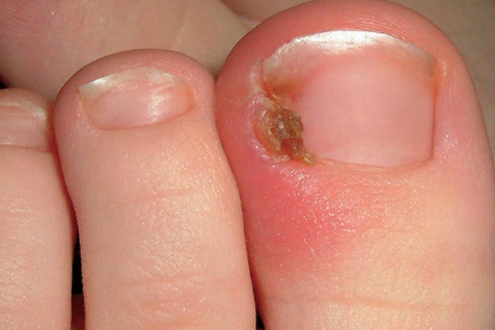 Ingrown-Toenails-Causes-Symptoms-Treatment