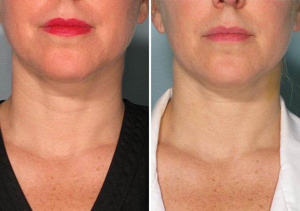 get rid of neck wrinkles
