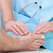 Bunions-Causes
