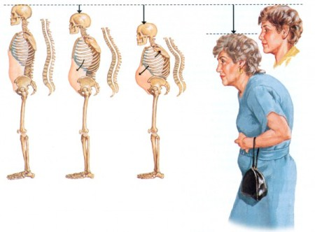Osteoporosis-Signs