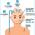 hairtransplant1000_grafts123clinic__Copie
