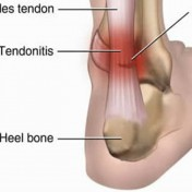 Tendinitis vs