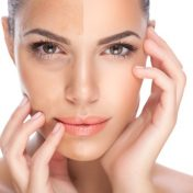 How to Get Clear, Spotless Skin