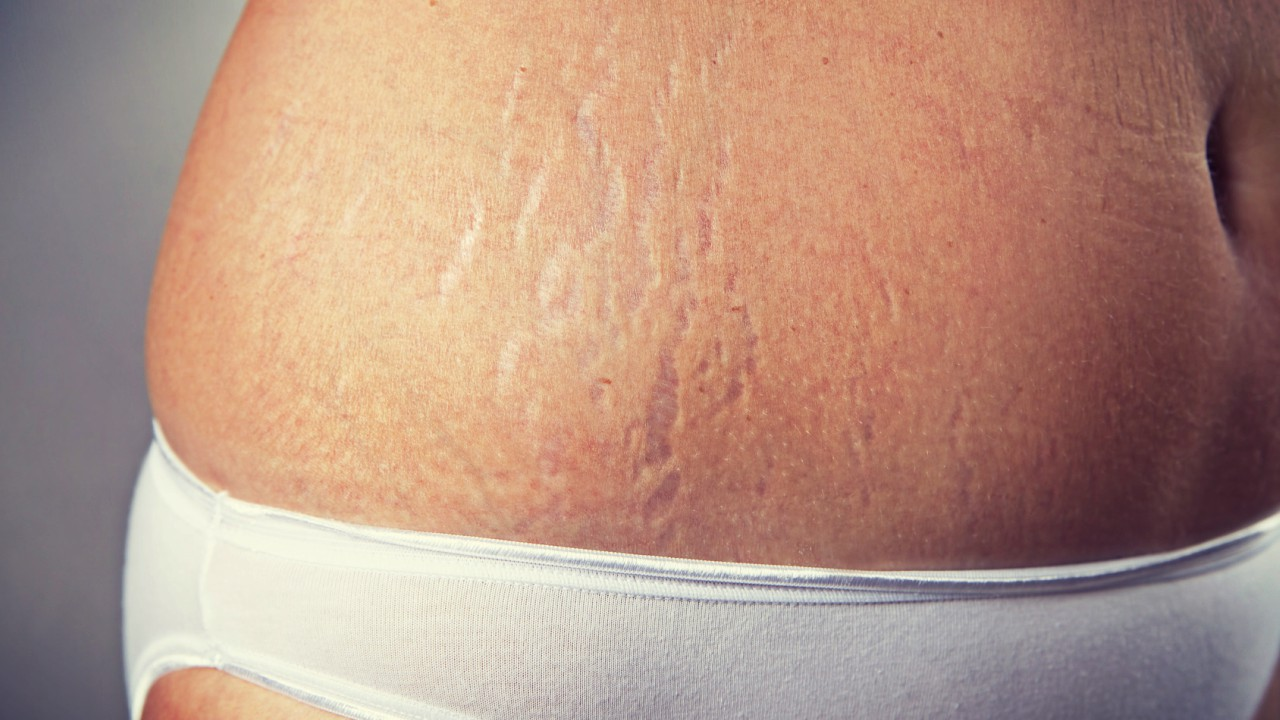 Home Treatment to Prevent Stretch Marks