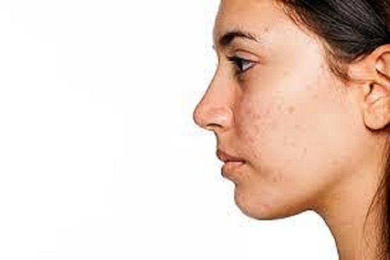 Tips on how to treat ACNE