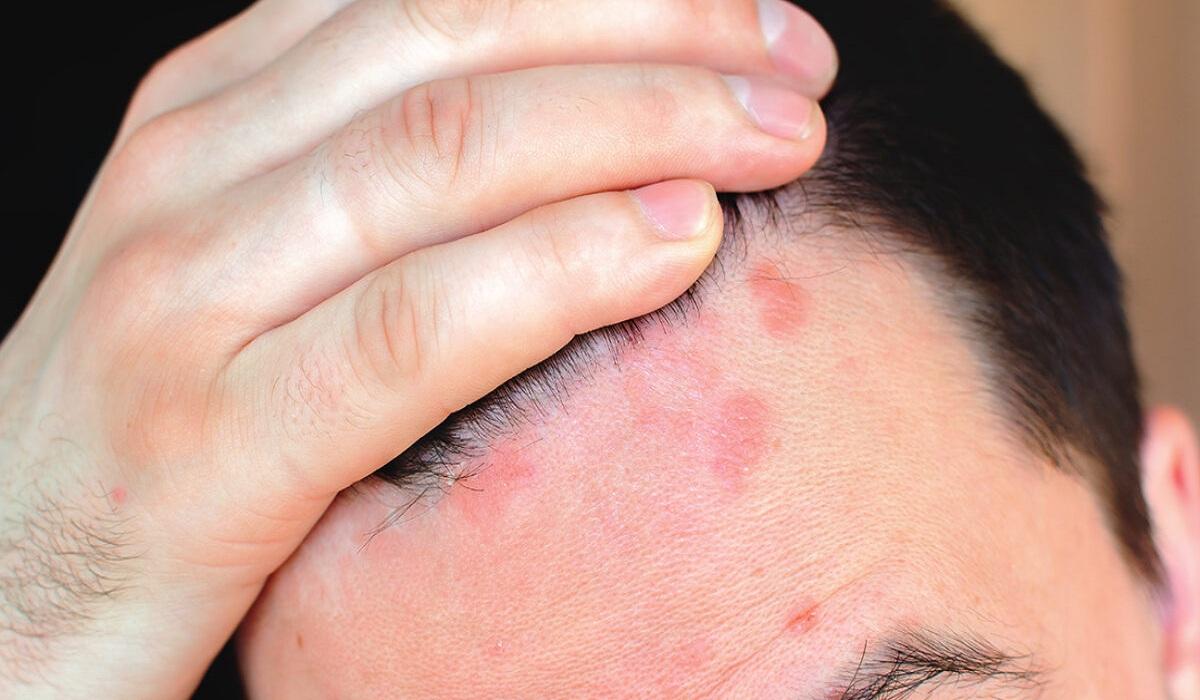 sores on scalp